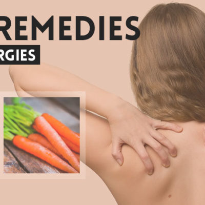 home-remedies-for-skin-allergies