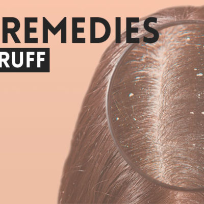 home-remedies-to-get-rid-of-dandruff
