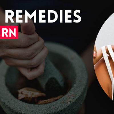 homemade-remedies-for-sunburn