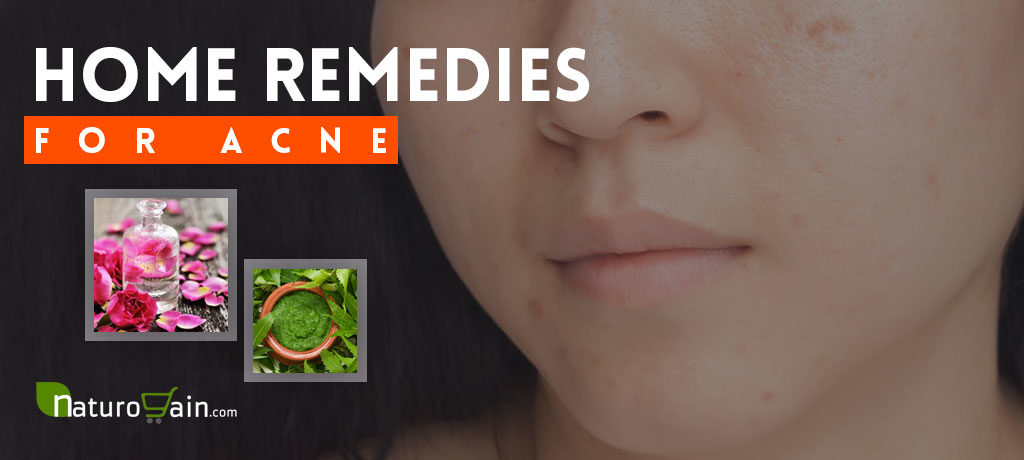Home Remedies for Acne Skin Problem