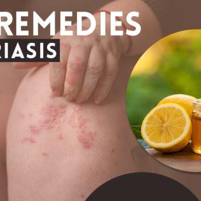 herbal-remedies-for-psoriasis
