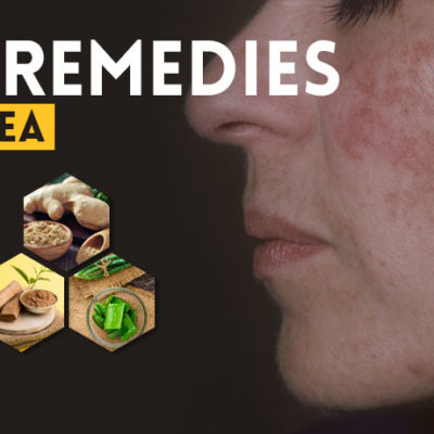 home-remedies-for-rosacea