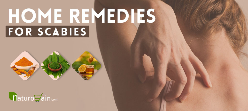 Best Home Remedies for Scabies