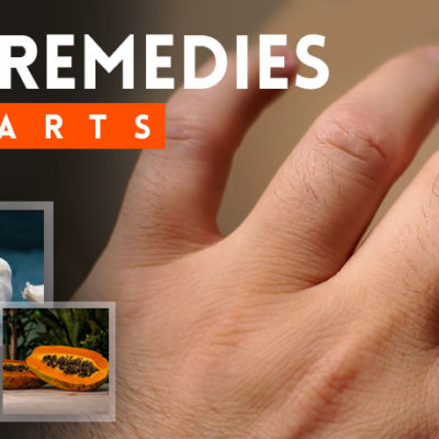 home-remedies-for-warts