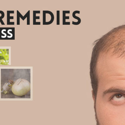 herbal-remedies-for-baldness