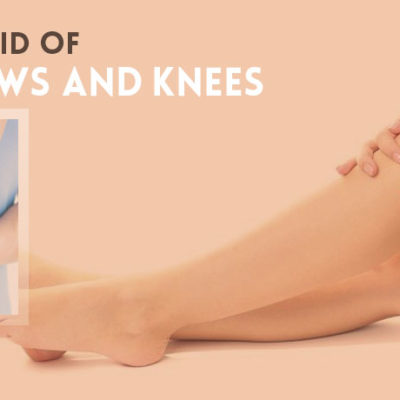 Get Rid of Dark Elbows and Knees Fast Naturally