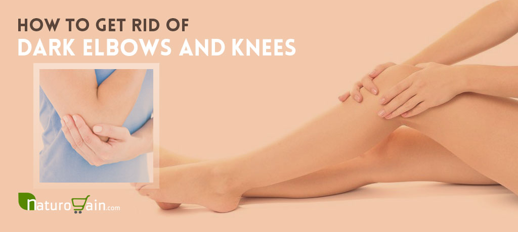 Natural Ways to Get Rid of Dark Elbows and Knees