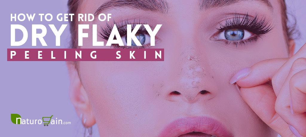Get Rid of Dry Flaky Peeling Skin