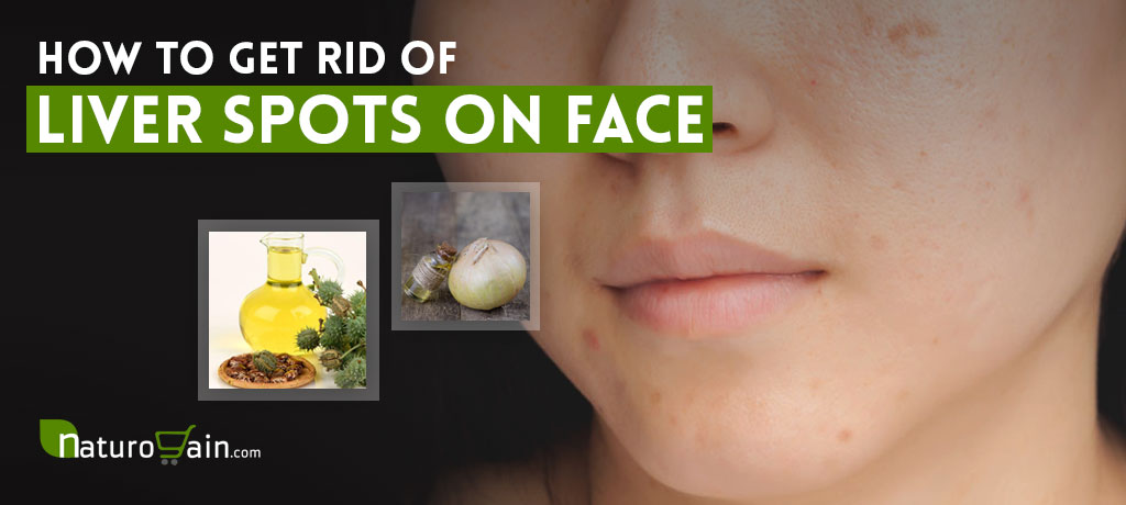 Get Rid of Liver Spots on Your Face