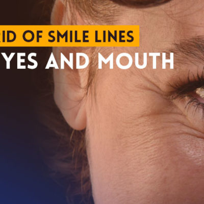 Get Rid of Smile Lines Around Eyes and Mouth