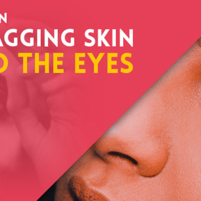 Tighten Sagging Skin Around the Eyes