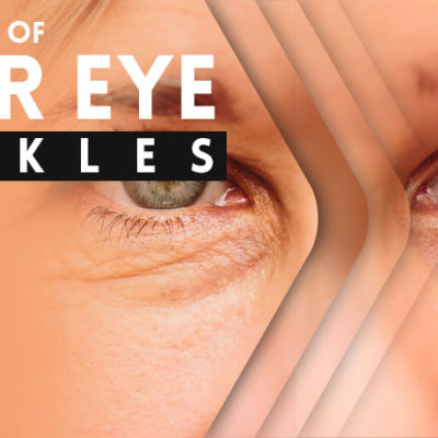 Get Rid of Under Eye Wrinkles Fast and Naturally
