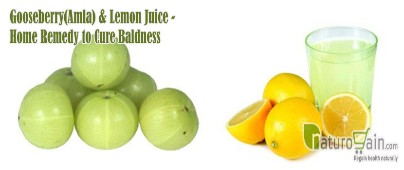 Home Remedy to Cure Baldness