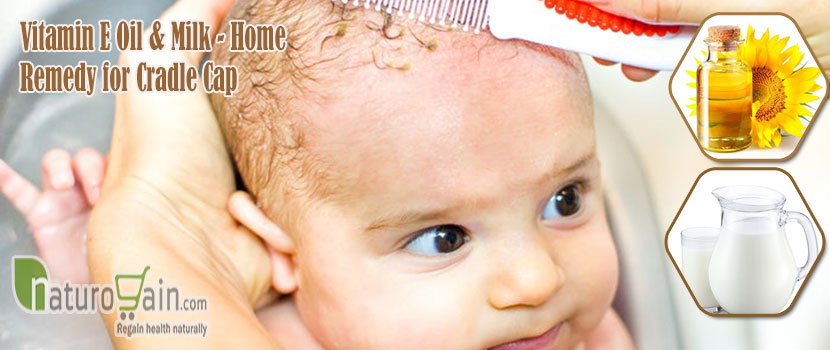 Home Remedy for Cradle Cap
