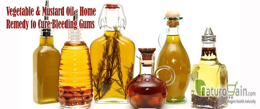 Home Remedy to Cure Bleeding Gums