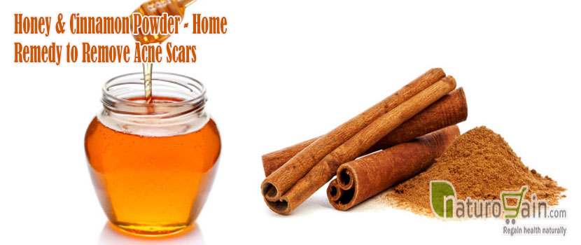 Home Remedy to Remove Acne Scars