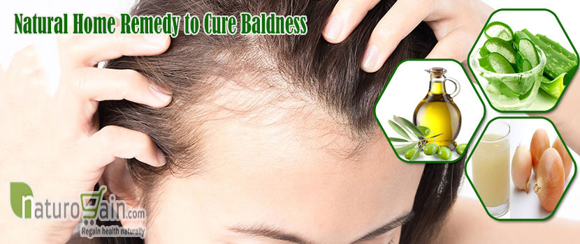 Natural Home Remedy to Cure Baldness