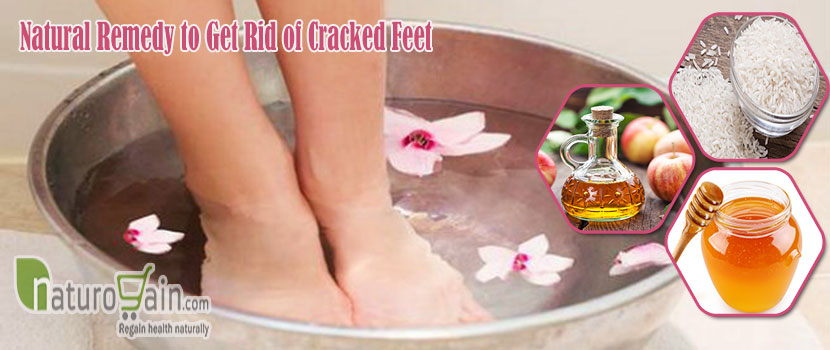 Natural Remedy to Get Rid of Cracked Feet