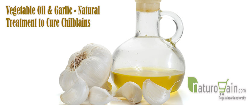 Natural Treatment to Cure Chilblains