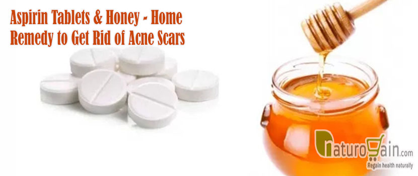 Remedy to Get Rid of Acne Scars
