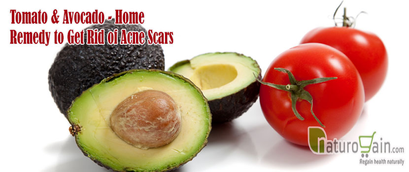 Tomato and Avocado Home-remedy to Get Rid of Acne Scars