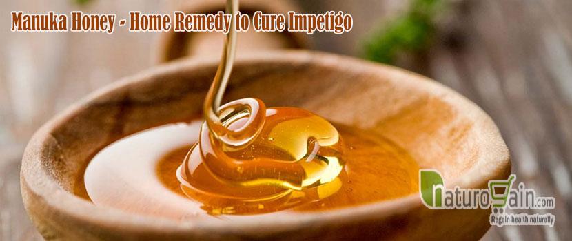 Home Remedy to Cure Impetigo