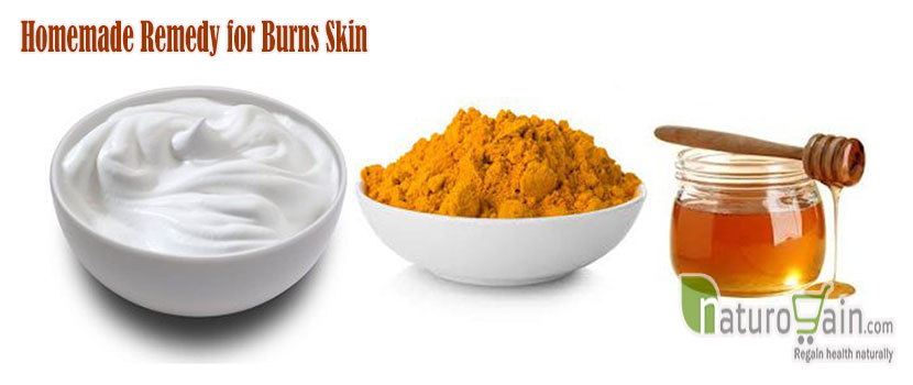 Homemade Remedy for Burns Skin