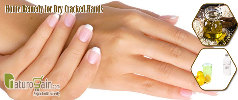 Remedy for Dry Cracked Hands
