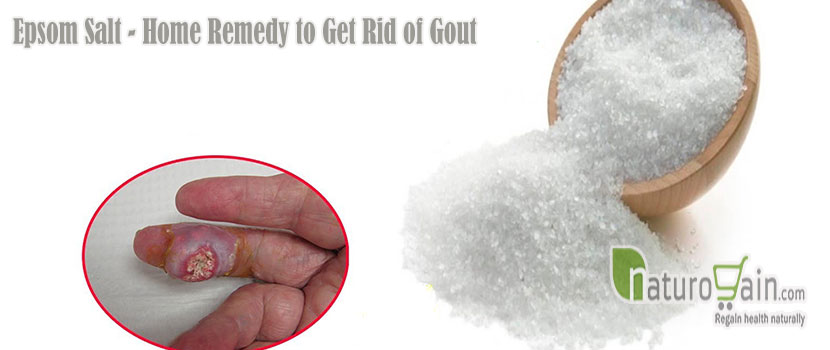 Remedy to Get Rid of Gout