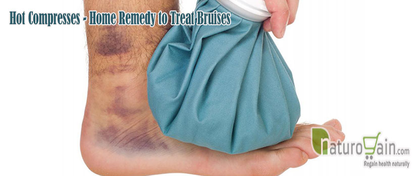Remedy to Treat Bruises