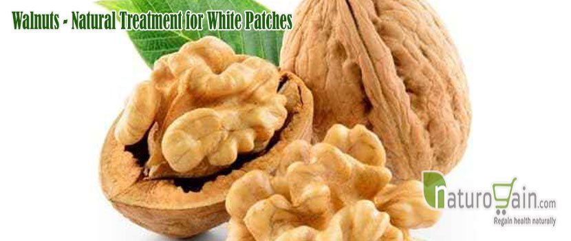 Natural Treatment for White Patches