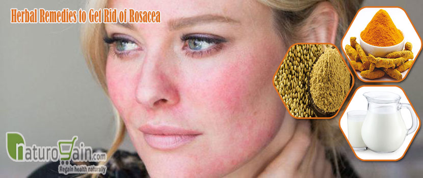 Remedies to Get Rid of Rosacea