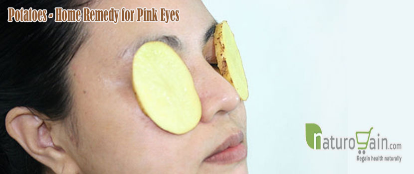 Remedy for Pink Eyes