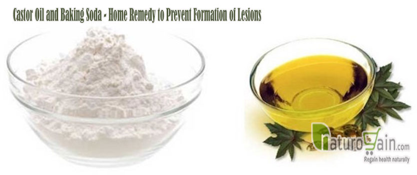 Castor Oil and Baking Soda