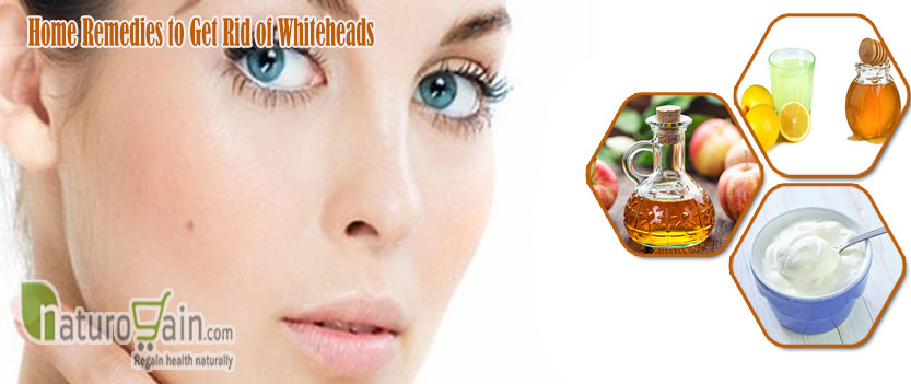 Home Remedies to Get Rid of Whiteheads