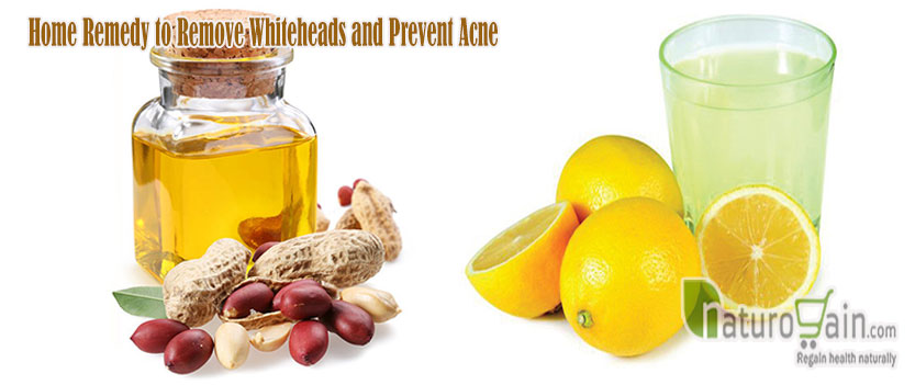 Home Remedy to Remove Whiteheads