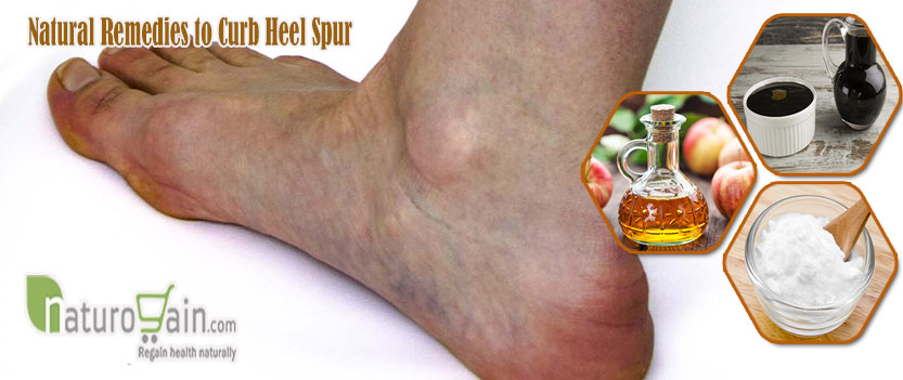 Natural Remedies to Curb Heel Spur