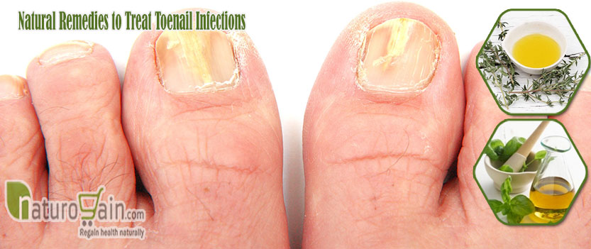 Natural Remedies to Treat Toenail Infections