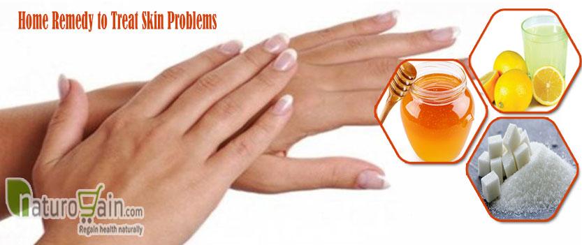 Remedy to Treat Skin Problems