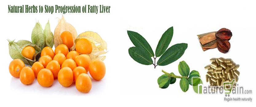 Herbs to Stop Progression of Fatty Liver