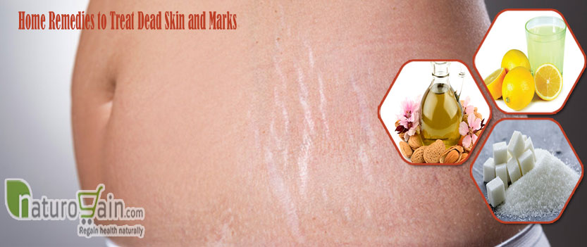 Remedies to Treat Dead Skin and Marks