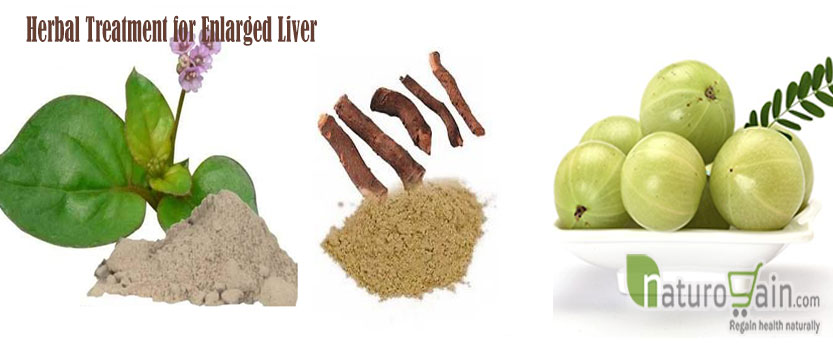 Treatment for Enlarged Liver