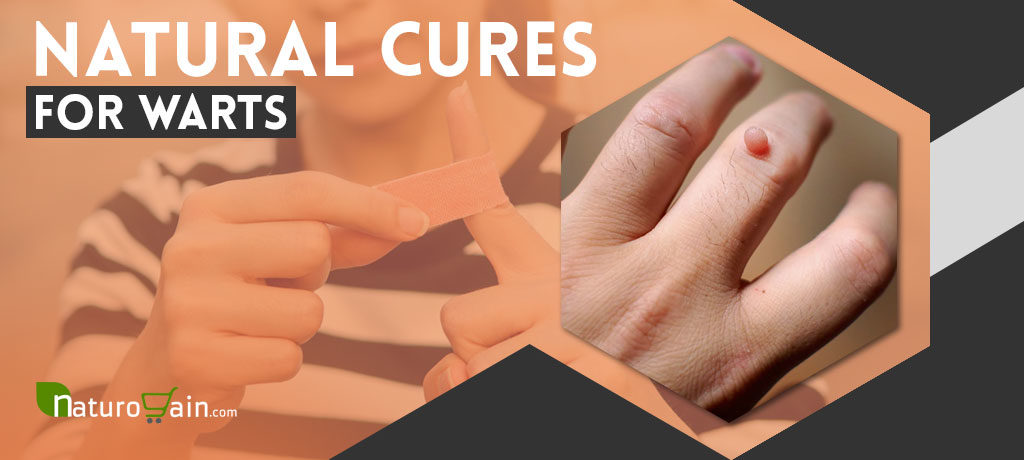 Natural Cures for Warts