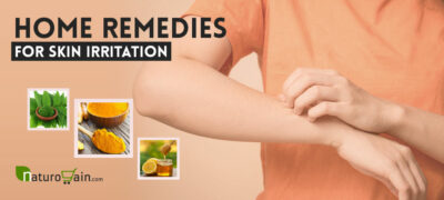 Best Home Remedies for Skin Irritation