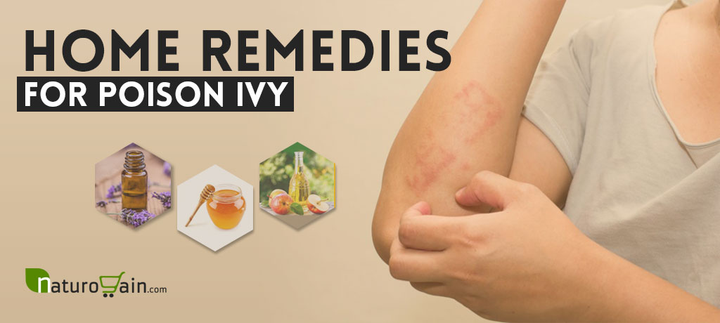 home remedies for poison ivy on your face